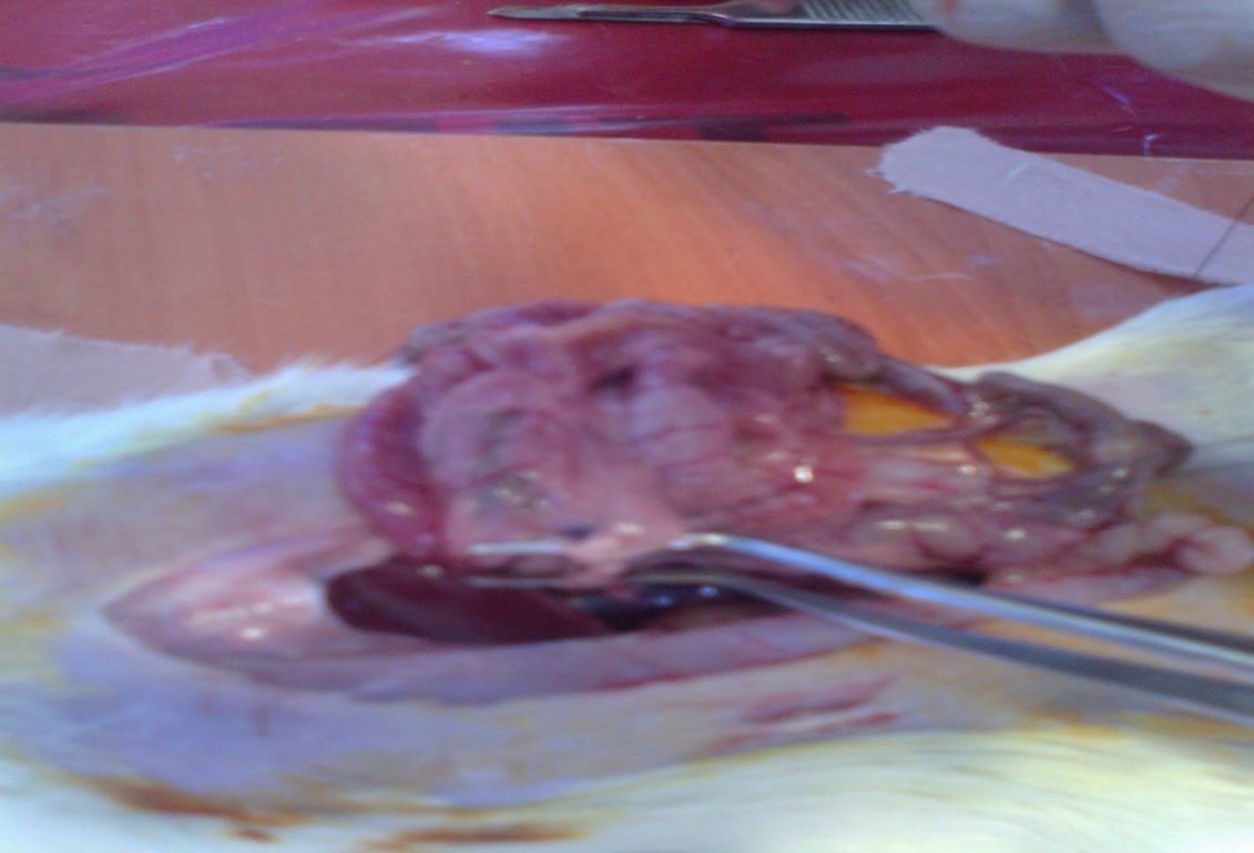Figure 2. Dissected and ligated Superior mesenteric vein was seen.jpg