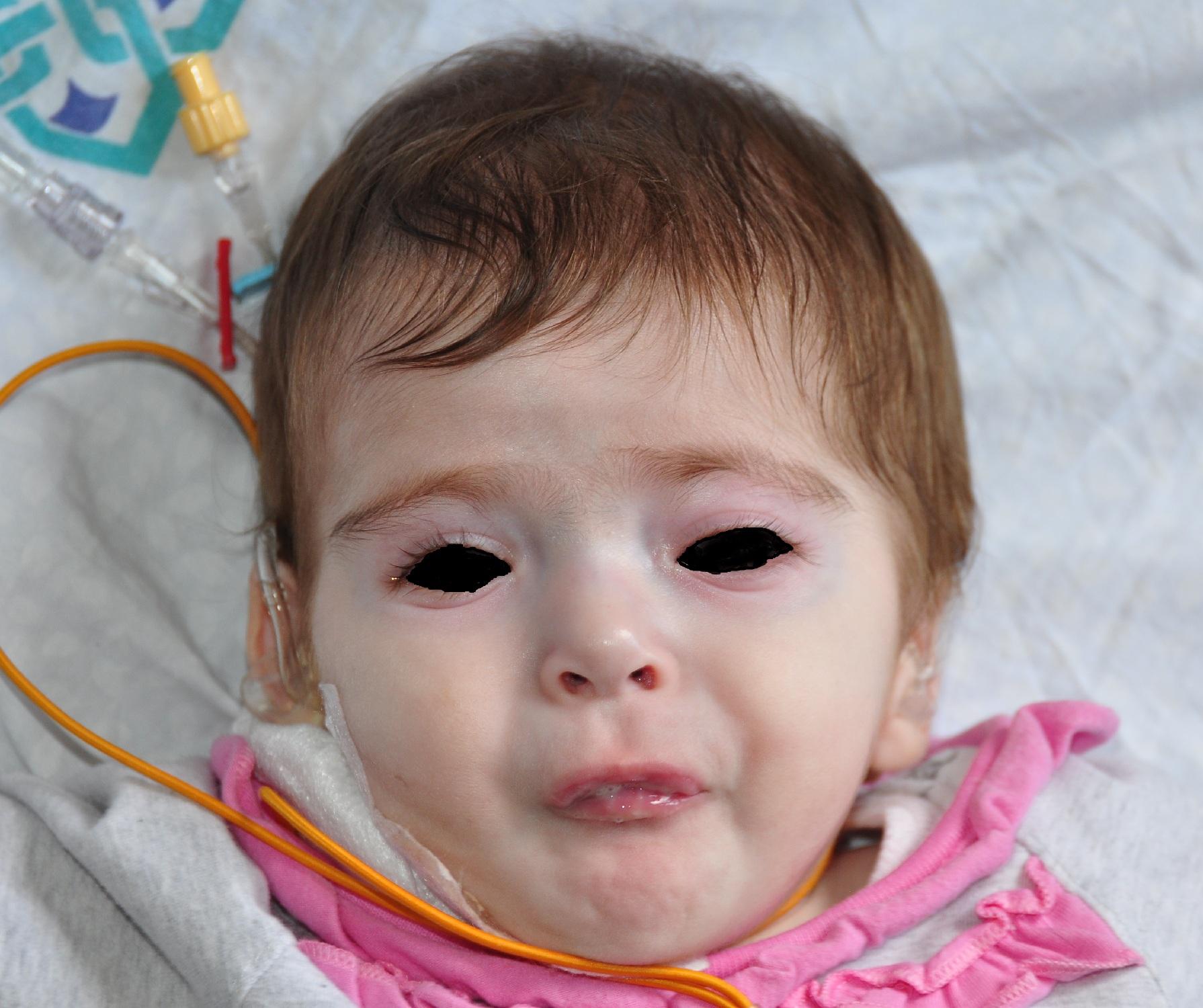 Fotoğraf 1, Olgunun yüz görünümü.jpg