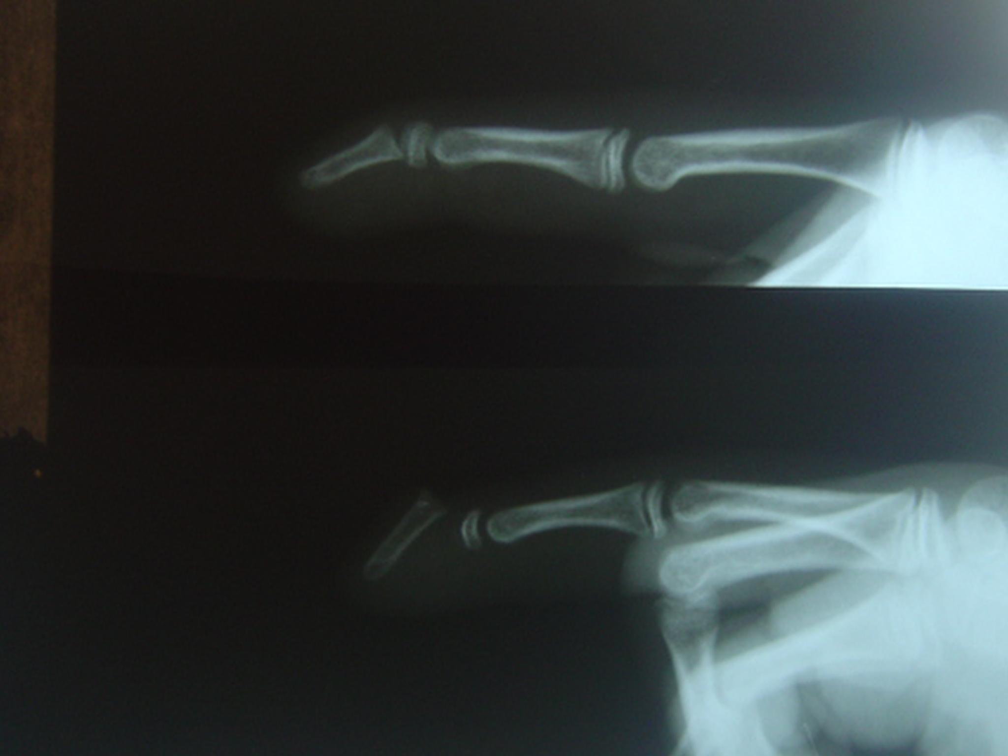 Şeki 1 Ameliyat öncesi 3. ve 4. parmaklaın yan gafisi.JPG
