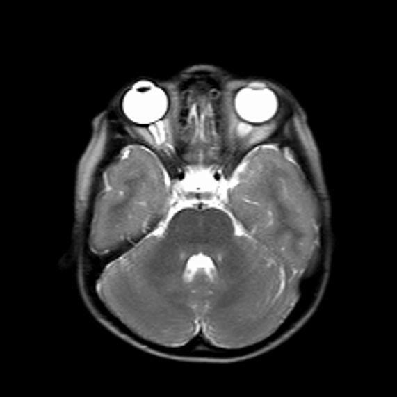 resim 2. optik gliom.jpg