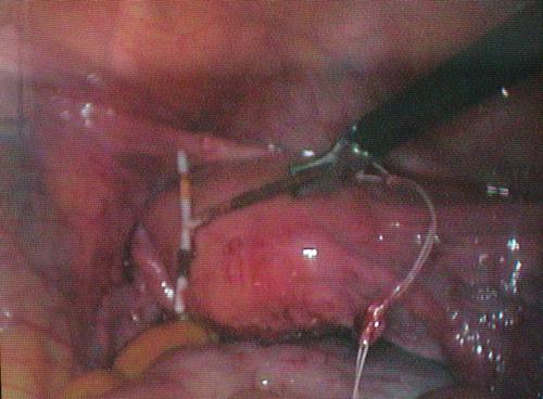 Resim 3 R¦-A n¦-n laparoskopik olarak +ğ¦-kar¦-lmas¦-.jpg